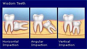 oral surgery dentist san diego